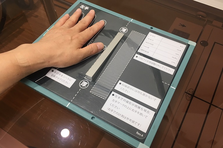 骨密度測定器